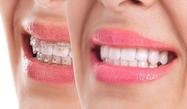 مدت زمان ارتودنسی و صاف شدن دندانها