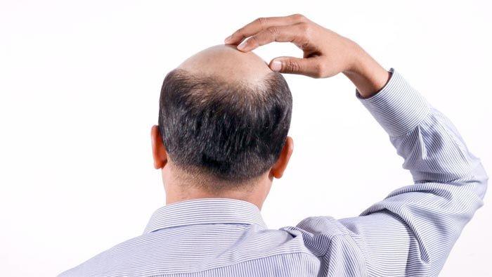 ریزش موی مردان و کاشت مو