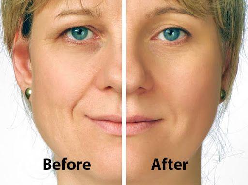 بهترین روش درمان افتادگی پلک