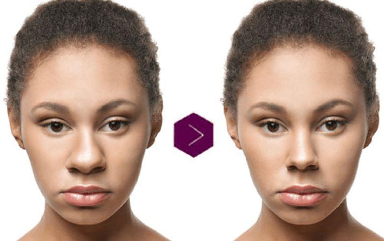 قبل و بعد از عمل بینی گوشتی